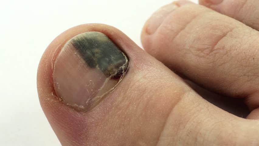 Методы устранения гематомы под ногтями пальцев