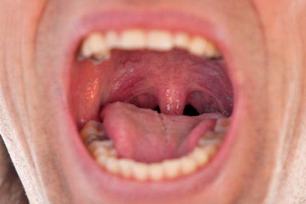 Ожог горла: симптомы, первая помощь и лечение