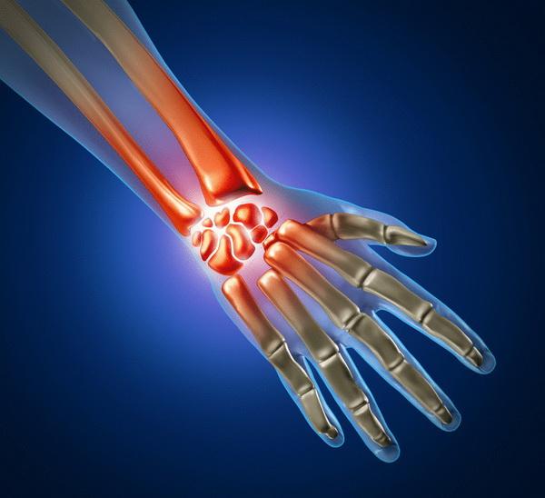 Перелом кисти, какие симптомы и как лечить