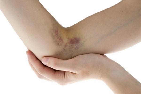 Гематома после операции — осложнение, которое можно предотвратить
