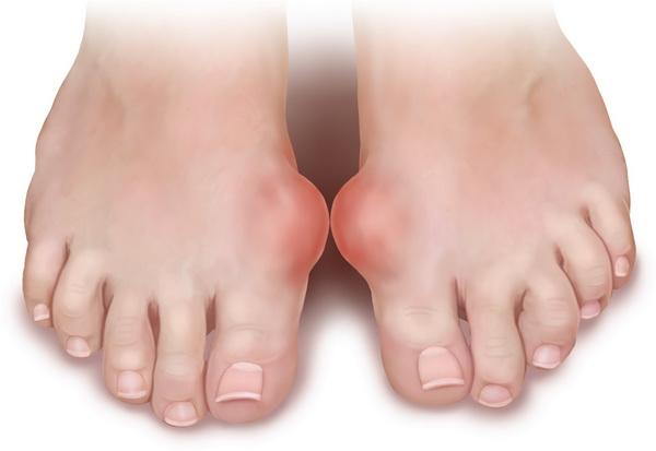 Подагрический артрит: причины, симптомы, методы лечения