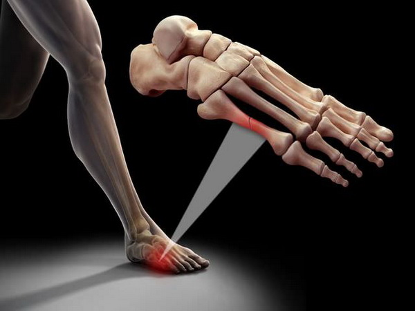 Признаки и лечение переломов мизинца на ноге