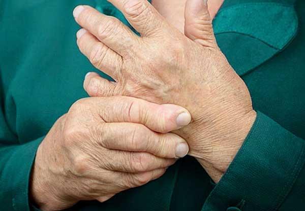 Псориатический артрит: симптомы, методы лечения