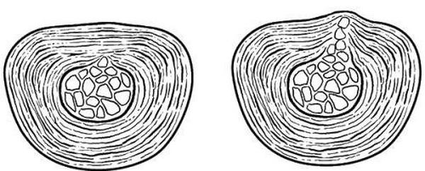 Виды циркулярной протрузии и причины их возникновения