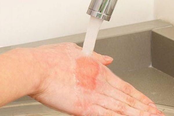 Ожог горячей водой: первая помощь, лечение