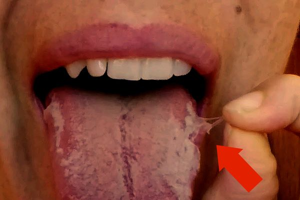 Насколько опасен и как лечить ожог языка
