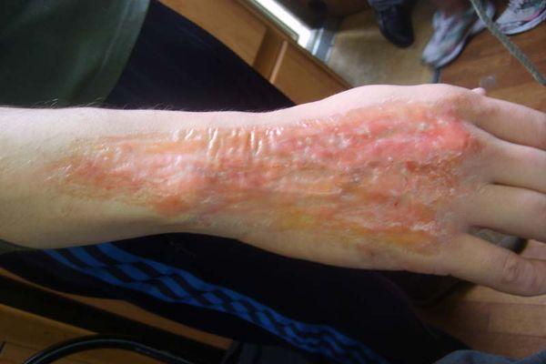 Ожог кипятком: первая помощь, лечение, прогноз