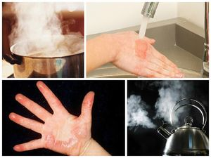 Термический ожог: степени и симптомы, первая помощь, лечение
