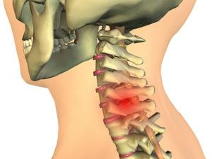 Характерные черты протрузии дисков шейного отдела позвоночника