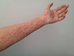 Как убрать шрам от ожога: все способы борьбы с дефектами кожи