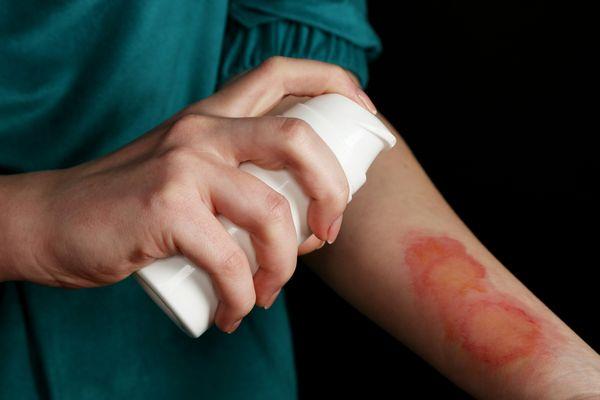 Как снять боль от ожога: эффективные препараты и народные средства