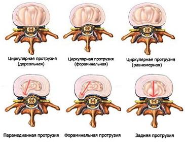 Виды протрузий межпозвоночных дисков