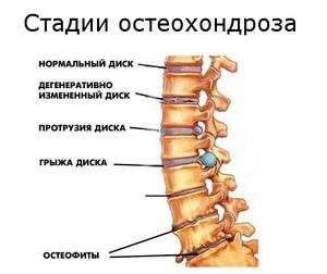 Стадии остеохондроза