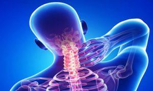 polisegmentarnyj-osteohondroz-1