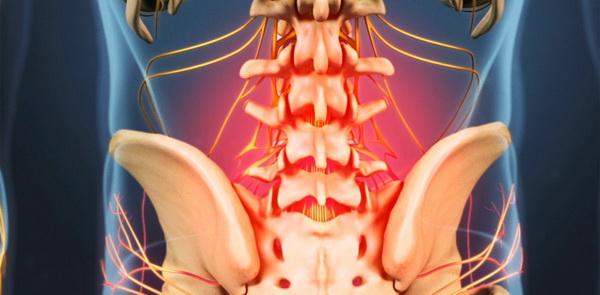 Поясничный остеохондроз