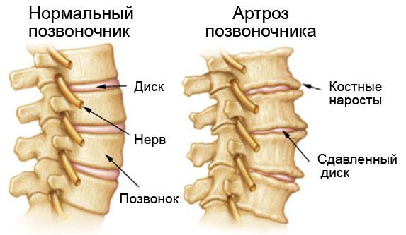 Артроз межпозвонковых суставов поясничного отдела