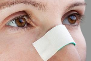 Гематома носа