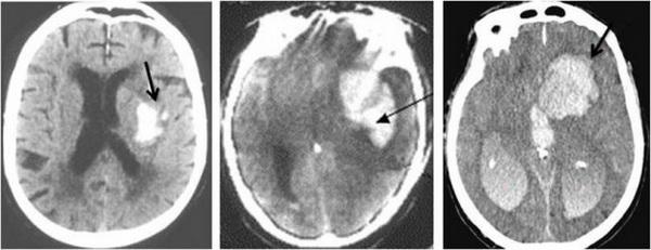 Способы устранения внутричерепной гематомы