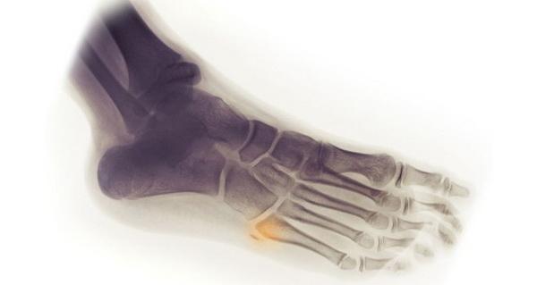 Рентгенография ступни