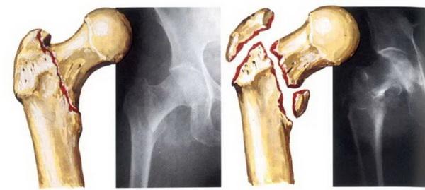 Диагностика переломов