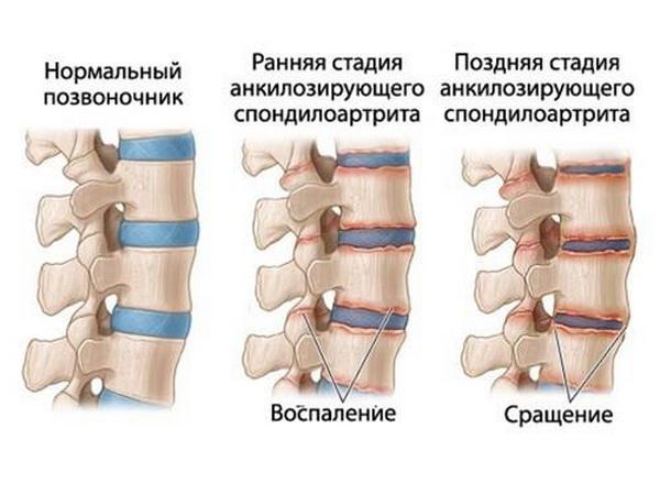 Разновидности артритов