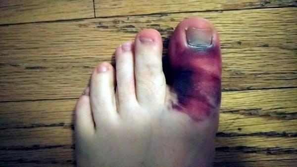 Вид стопы с переломанным пальцем