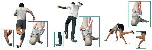 Причины травмы