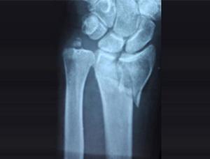 Диагностика повреждения