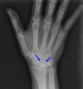 Повреждение полулунной кости