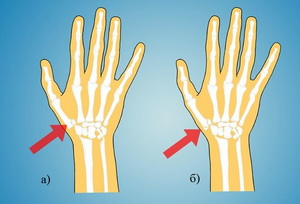 Повреждения I пястной кости