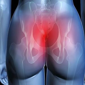 Clinicheskie-osobennosti-perelomov-kopchika-diagnostika-i-lechenie-10.jpg