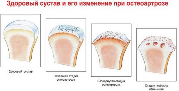 Деформирующий остеоартроз коленного сустава 1 2 3 степени - лечение и признаки
