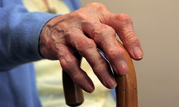 Ревматоидный артрит: симптомы и лечение у взрослых и детей