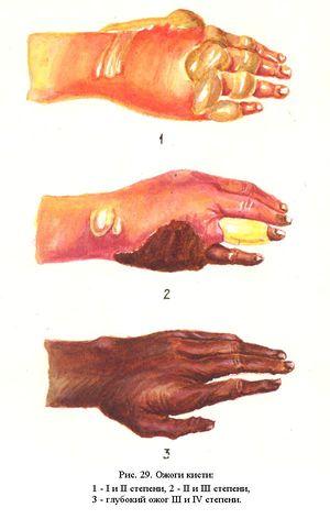 Ожог горячей водой: первая помощь, лечение, народные ... Слои Эпидермиса