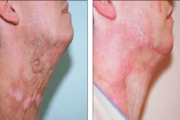Пересадка кожи после ожога: показания, противопоказания, операция, реабилитация